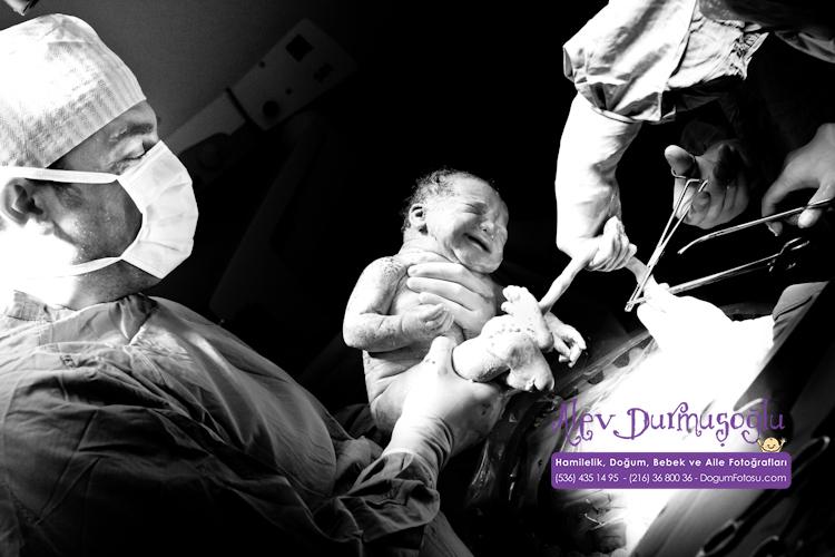 Barkın'ın Doğum Fotoğrafları