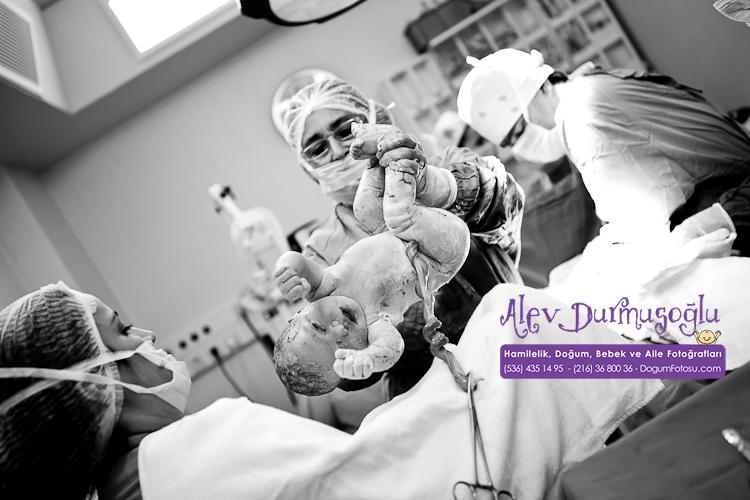 Mina Defne'nin Doğum Fotoğrafları