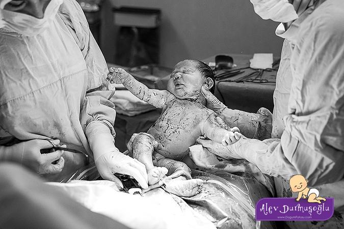 Mete Aras'ın Doğum Fotoğrafları