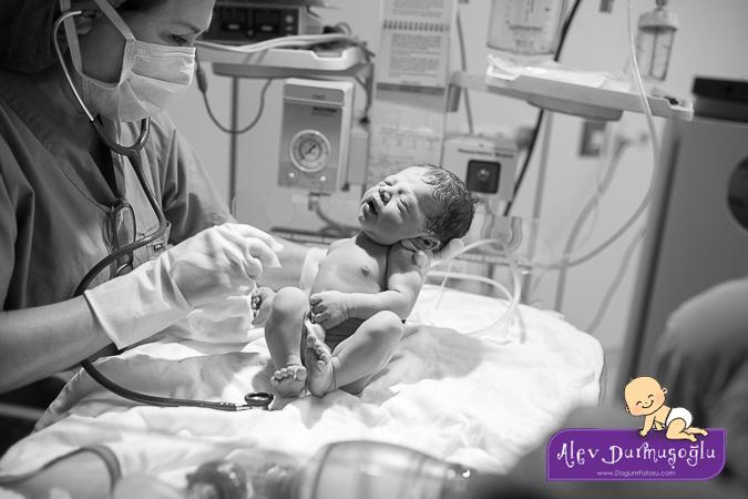 Mila Dakak Doğum Fotoğrafları